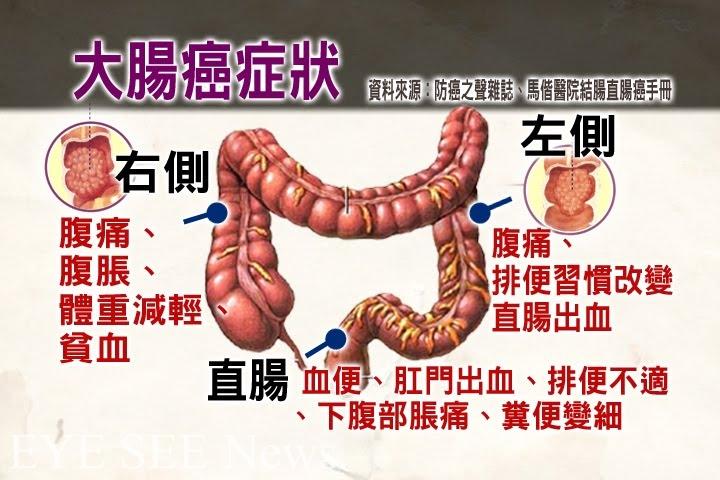 大腸癌症狀(資料來源:防癌之聲雜誌,馬偕大腸癌手冊)