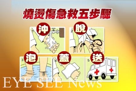 燒燙傷送醫前急救5步驟