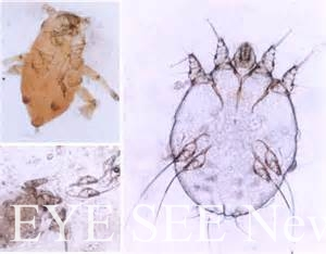 疥瘡病原體-疥蟲!(圖-皮膚科醫學網站)